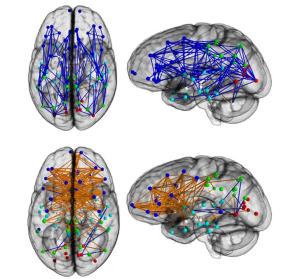 Konektivitas Otak Pria (atas) dan Konektivitas Otak Wanita (bawah)